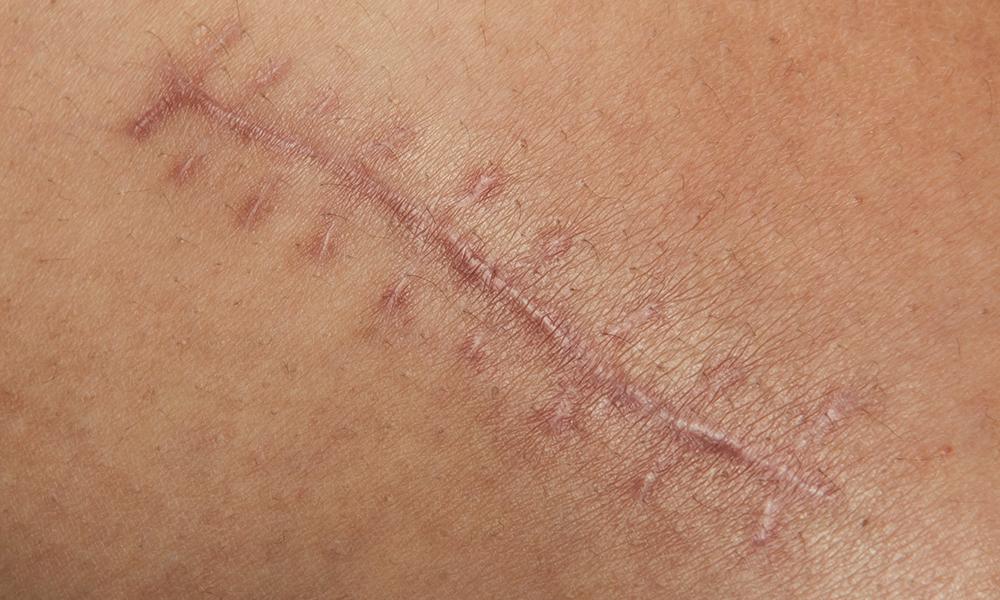 Основные способы и правила лечения кожных рубцов