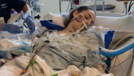 18-летняя девушка из Лонг-Бич чуть не умерла из-за электронных сигарет. Ее легкие отказали за 48 часов