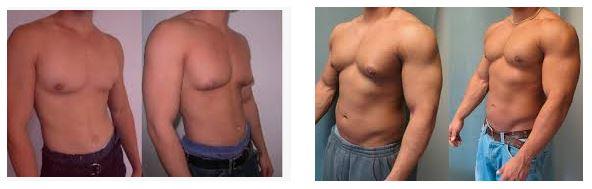 Гинекомастия (также называемая «мужской грудью»
