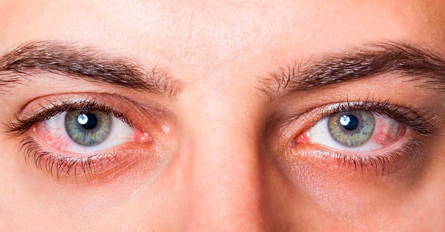 Симптомы заболеваний глаз