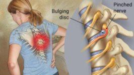 Радикулит: причины, симптомы, диагностика и методы лечения