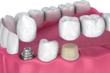 Коронки для зубов из металлокерамики