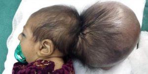 Афганские хирурги отрезали младенцу лишнюю голову