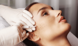 Лечение купероза мезотерапией