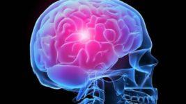 День борьбы с инсультом: задумайтесь о своем здоровье