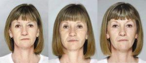 Есть ли эффект от нехирургического фейслифтинга: фото до и после
