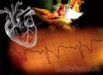 Кардиостимуляторы снижают частоту обмороков