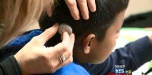 Кохлеарный имплант подарил ребенку слух