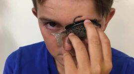 Мальчик 11 лет, в глазу которого застрял удильный крючок, спокойно поехал домой, чтобы перерезать леску