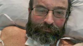 «Моим детям сказали, что я не выживу»: мужчина подхватил редкий грибок, от которого в прошлом году погибла его собака