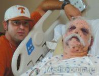 Мужчина выжил после 1 200 укусов