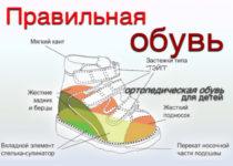 Правила выбора ортопедической обуви