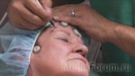 Опухоль мозга удалили через глаз