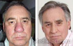 От красного носа теперь легко избавиться (ФОТО ДО и ПОСЛЕ)