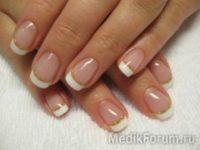 Проблемы с ногтями: о чем они говорят?