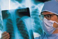 Туберкулез в России — больше, чем болезнь