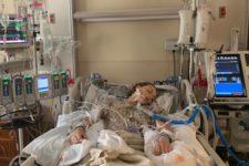 У девушки развилось редкое заболевание легких и ее ввели в медикаментозную кому после 3 лет вейпинга