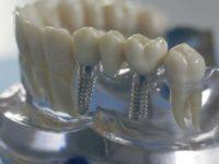 Ученые раскрыли метод формирования роста новых зубов