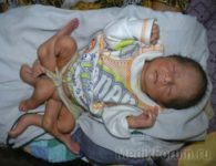 Уникальный случай: родился мальчик с шестью ногами! (ФОТО)