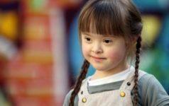 В России растет число людей с синдромом Дауна