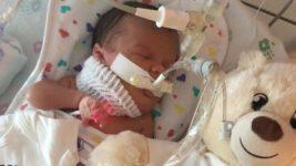 В США у ребенка на шее вырезали гигантскую кисту в 13 см через несколько часов после рождения