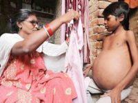 Загадочная болезнь превращает тело мужчины из Индии в огромный шар