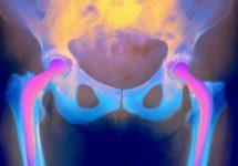Замена тазобедренного сустава опасна для мужского здоровья